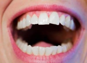 closeup of smiling mouth