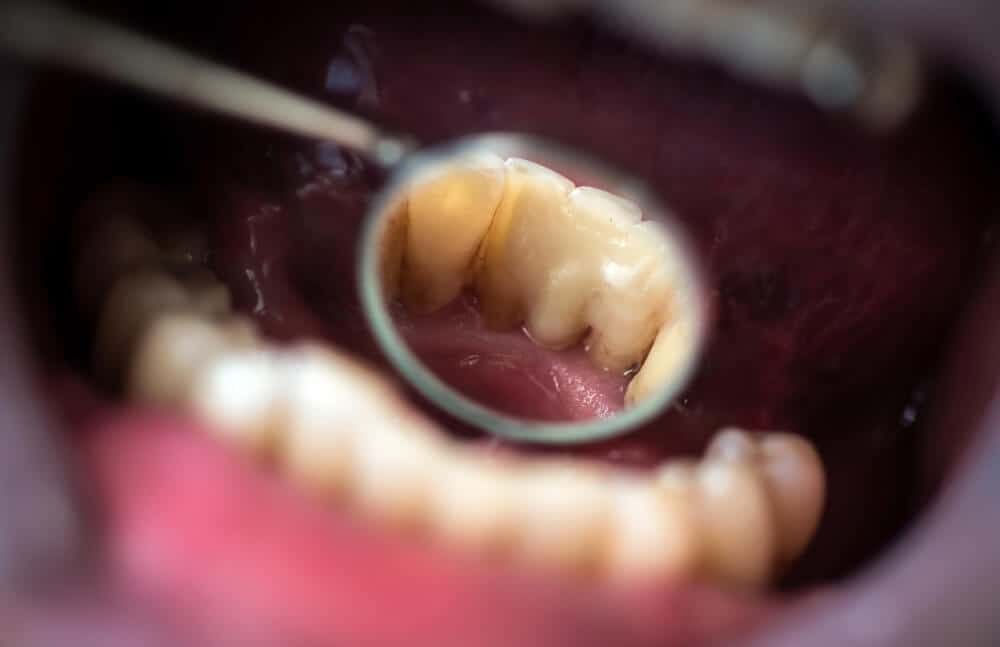 dentist looking at damaged teeth
