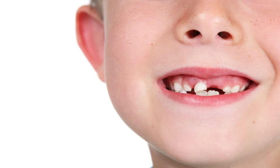 A child's smile with a missing tooth