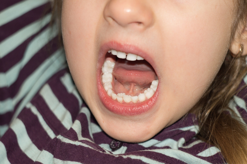 A child with two rows of teeth that needs a tooth extraction from a pediatric dentist