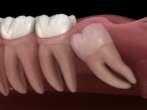 An image of an impacted wisdom tooth